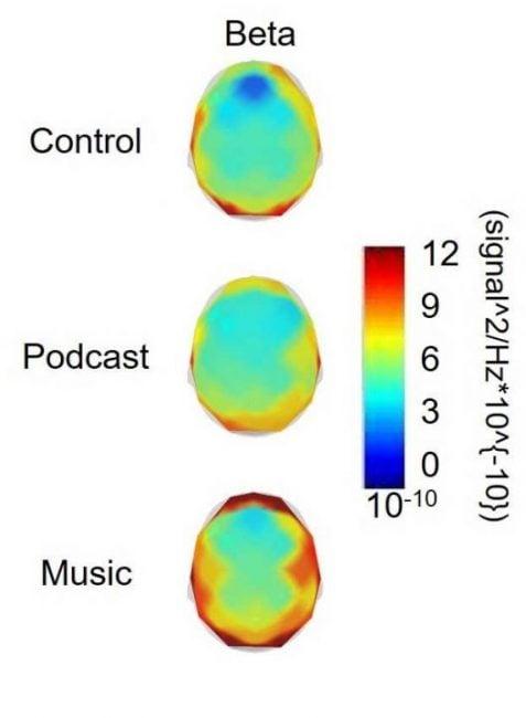 Spójrzcie, co się dzieje z naszymi mózgami, gdy słuchamy podcastów albo muzyki podczas ćwiczeń 16