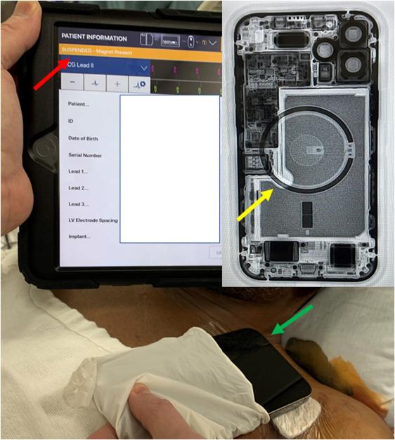 iPhone 12 MagSafe Defibrylator
